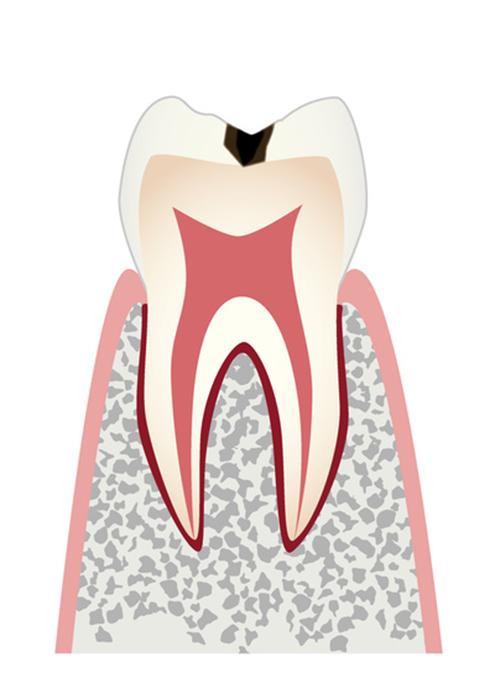 歯の表面までの虫歯